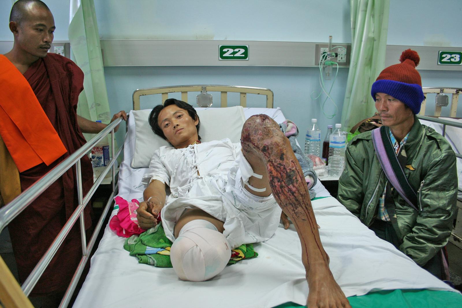 Photo of Deadly Soil: Burma's Enduring Landmine Tragedy