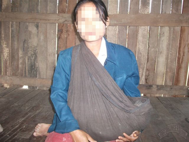 Photo of Photo evidence the Burma Army uses civilians as human shields