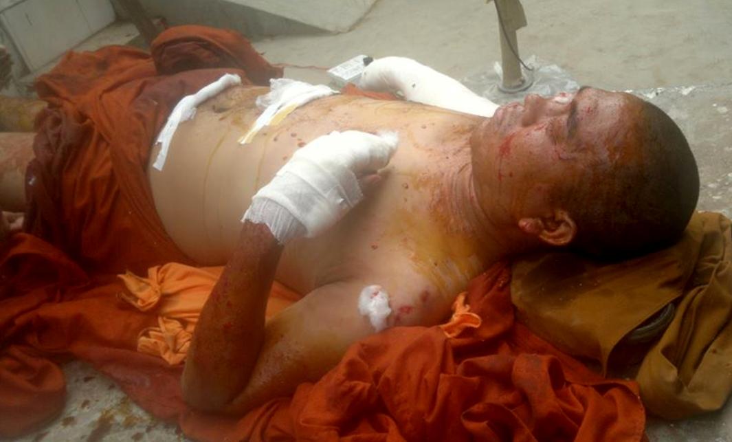 Photo of Burmese monk injured in Indian bombing