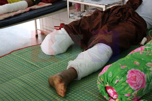 Photo of Returning Displaced Mae Tha Wor Villager Loses Lower Leg in Landmine Explosion  – Villagers Fear Mines Used by the BGF and DKBA Militias